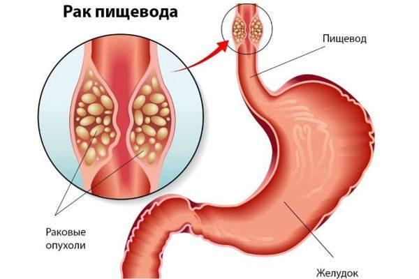 Лечение рака пищевода в Корее | Olivezonemedical