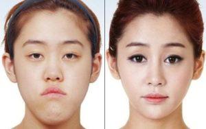 Операция на лицо в Корее