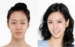 Клиники пластической хирургии в Корее